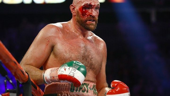 Tyson Fury Fears Eye Could Reopen, Wont Risk Sparring To Head